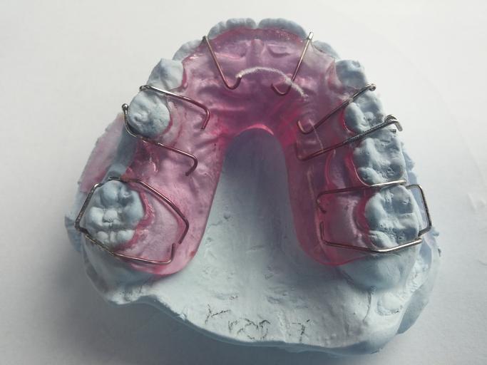 rovnání zubů – drátky na modelu